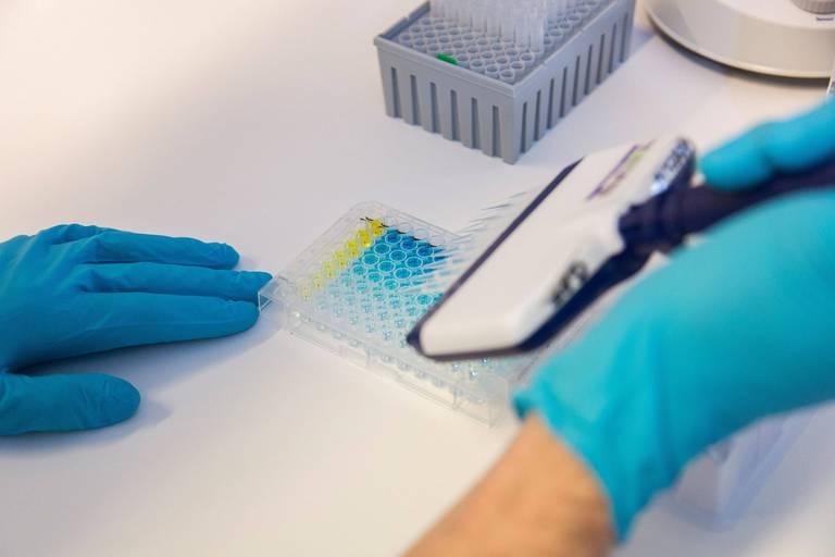 Asit Biotech suspendue temporairement à la Bourse de Bruxelles